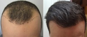 Hair Transplants London results
