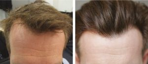 Hair Transplant Clinic in Budapest, and London